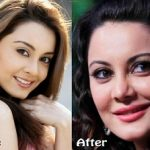 Minissha Surgery Before After