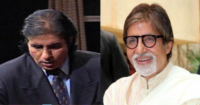 Amitabh Bachchan Hair Transplant