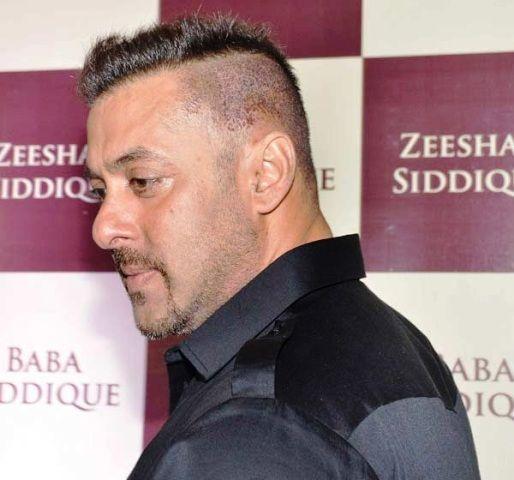 Salman Khan - Hair Transplant Infection